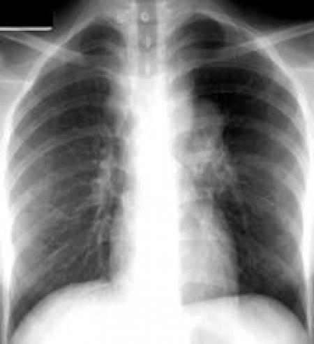 La metformina per la Tubercolosi?