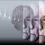 Alzheimer, un virus può impedirne la formazione
